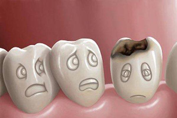 Carie dentara informatii utile Stomatologie in Brasov